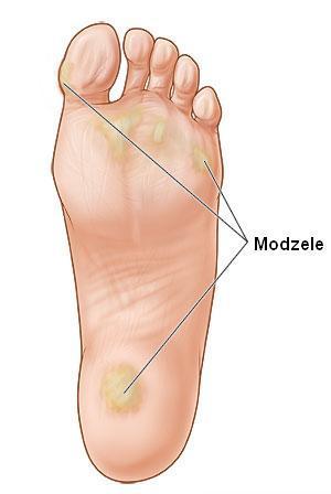 Modzele – stwardnienia na stopach – jak je zwalczyć?